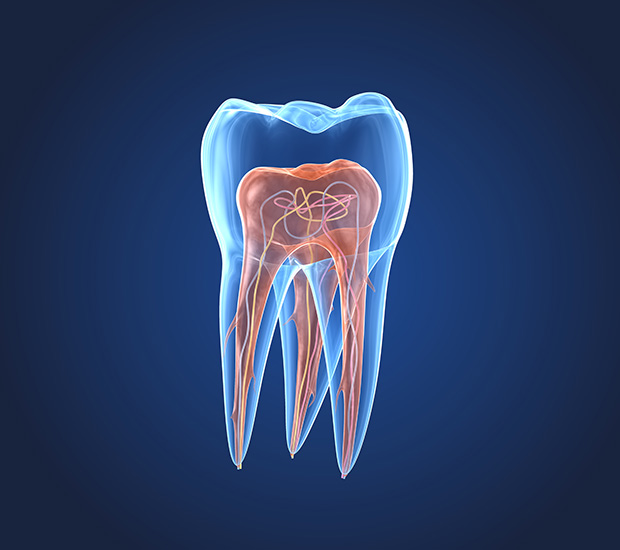 Agoura Hills What is an Endodontist